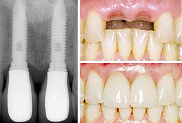 dental-implant-photo-1