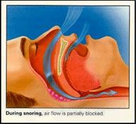 snorring